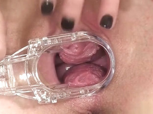 Hottie Plays With A Speculum